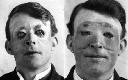 Walter Yeo first plastic surgery patient